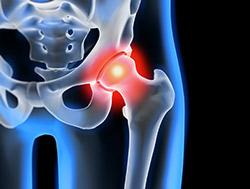 altération articulaire de la hanche