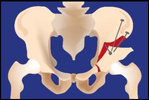 Chirurgie Orthopédique Nantes - ostéotomie hanche opération